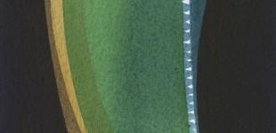 Artichoke 4 - 4 x 4 - scan025