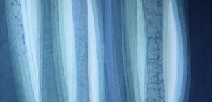 151852- glazed 2 - 10 x 10